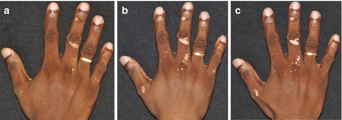 Integrative Dermatology: Applying Knowledge of Ayurvedic