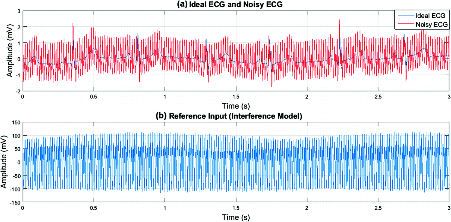 Reduction of Power Line Interference in ECG Using Adaptive