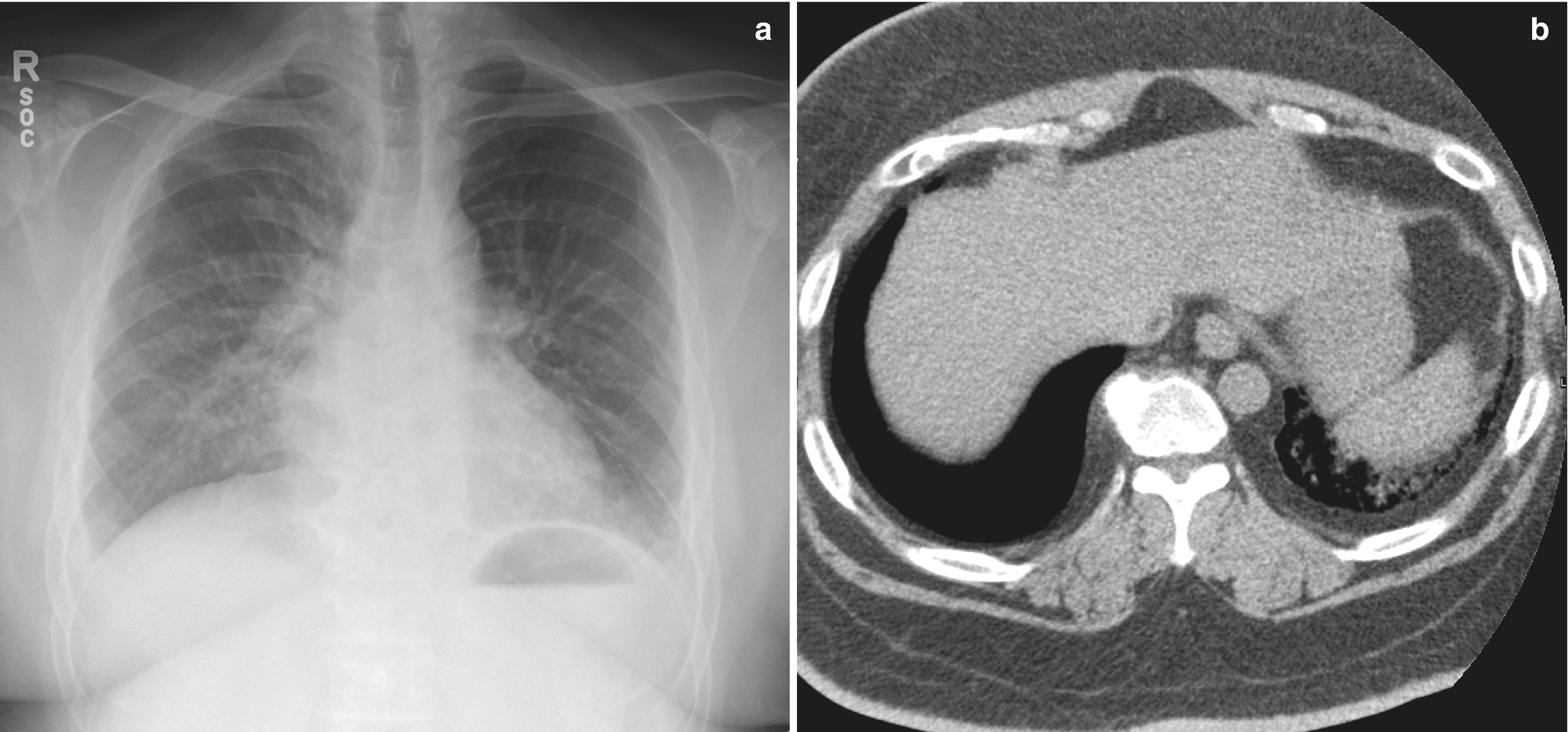 Imaging of Chest Wall and Pleura   SpringerLink