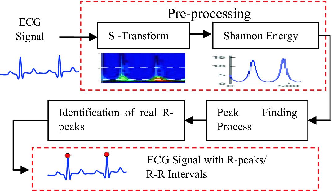 R-Peaks Detection Using Shannon Energy for HRV Analysis