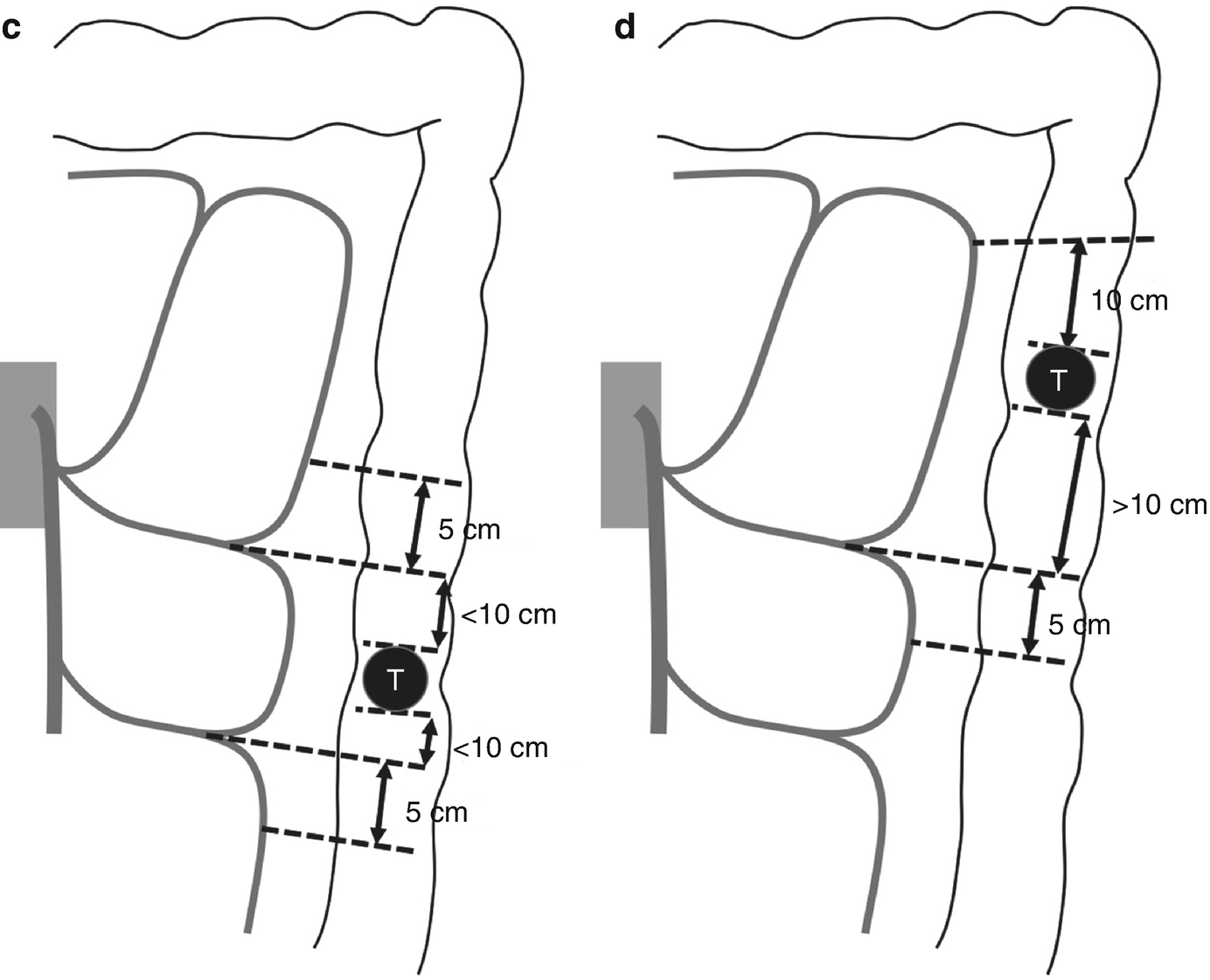 D3 Lymph Node Dissection For Colon And Rectal Cancers Springerlink