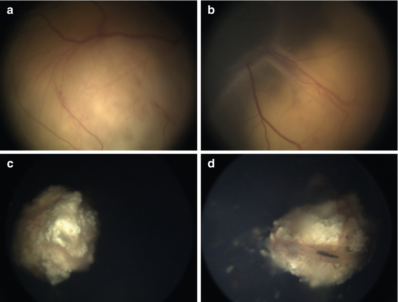 Current Management in Retinoblastoma | SpringerLink