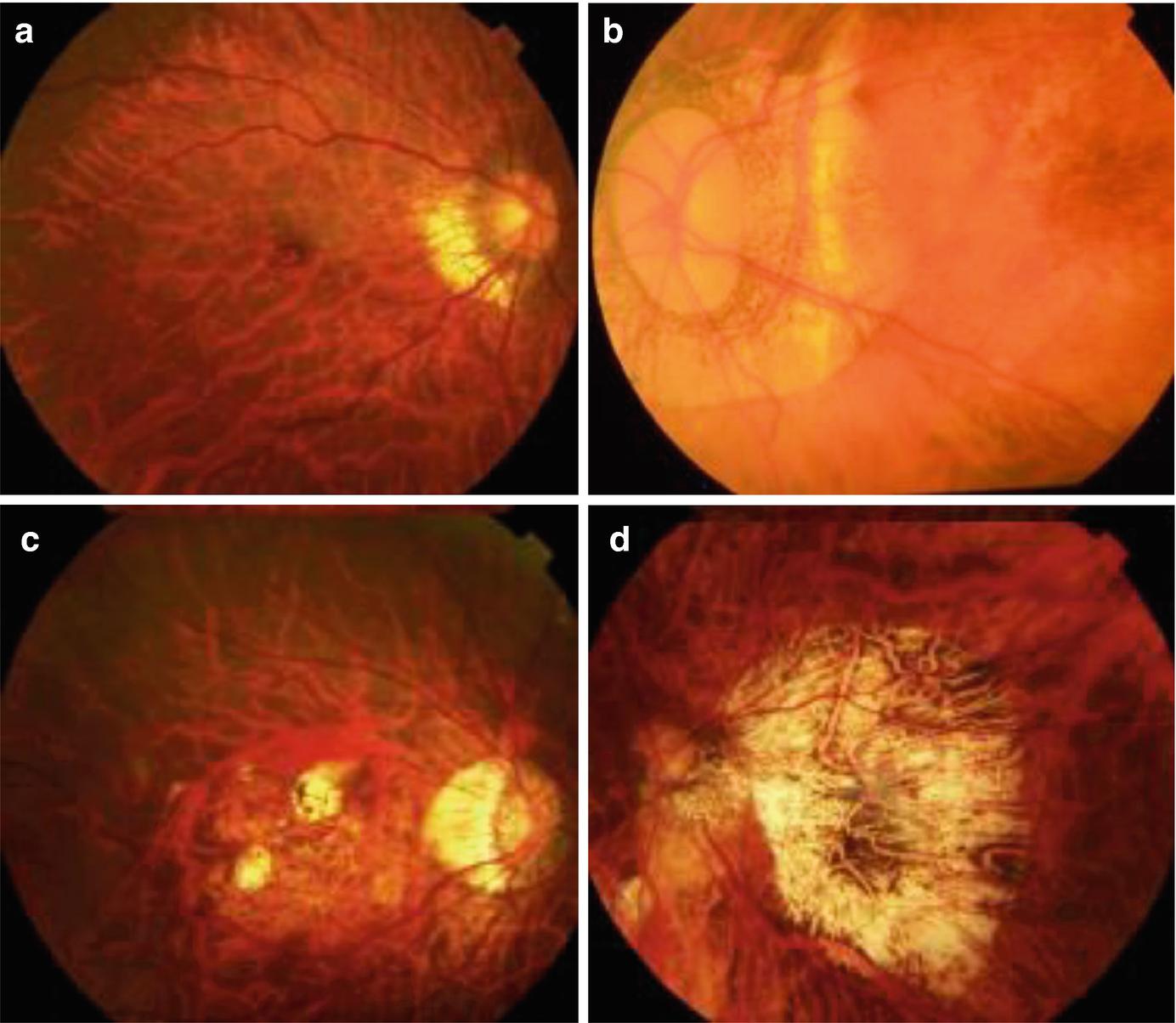 myopia fundus