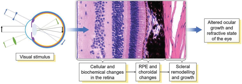 patogenezis myopia