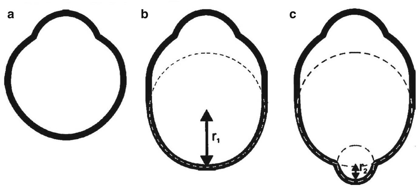 Mi a myopia és a hyperopia, Hyperopia serdülőknél, Látási norma és patológia