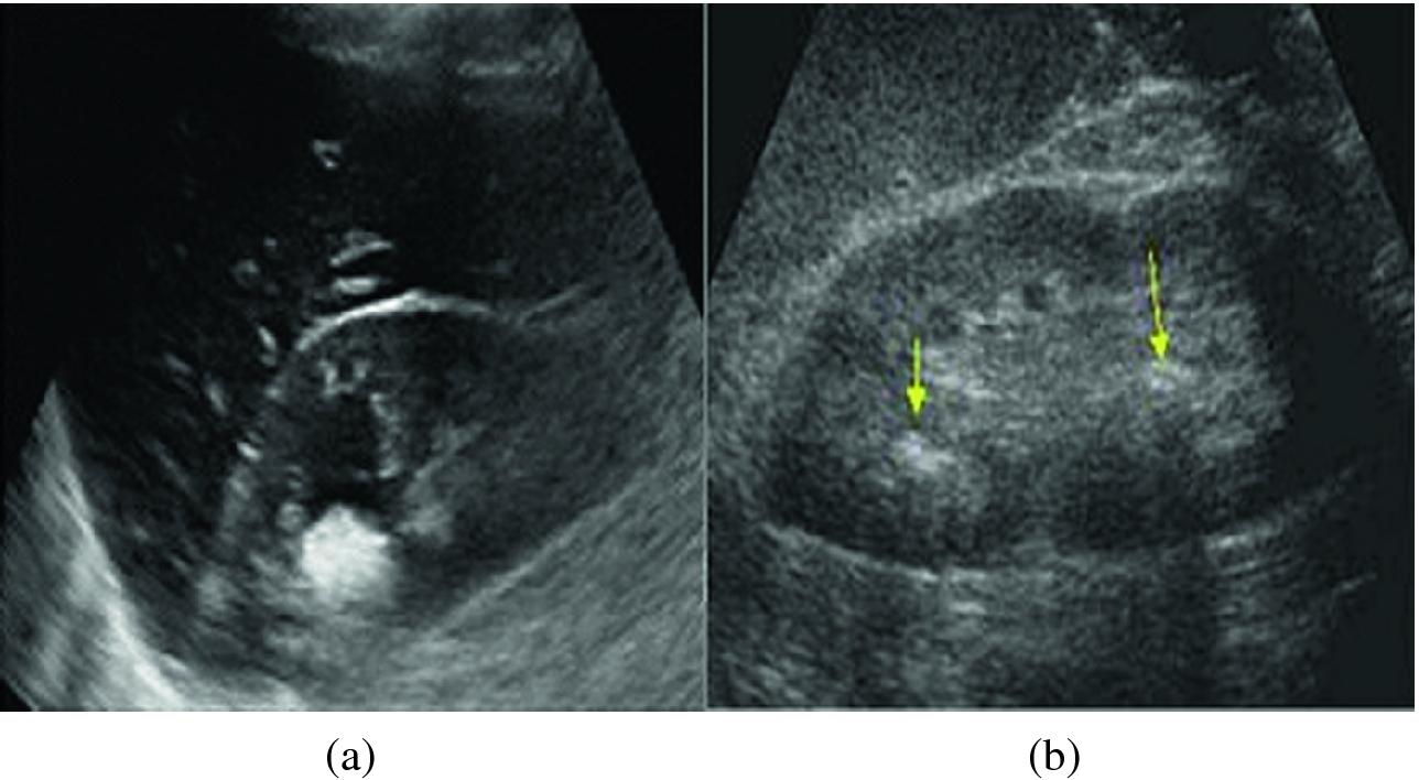 Segmentation Of Kidney Stones In Medical Ultrasound Images Springerlink