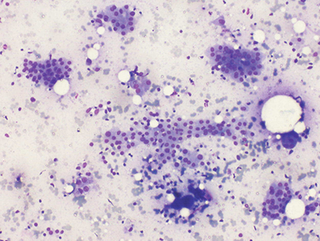 de quervain s thyroiditis cytology
