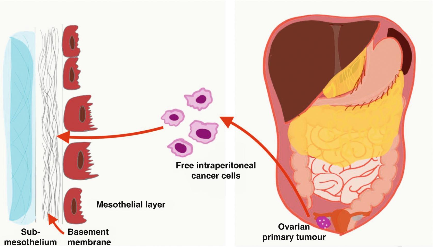 ovarian cancer peritoneal dissemination)