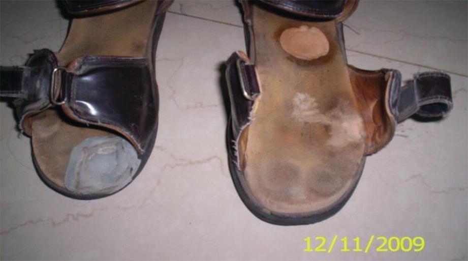 Offloading Footwear And Immobilization Springerlink