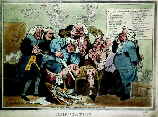 Surgery and Emotion: The Era Before Anaesthesia | SpringerLink