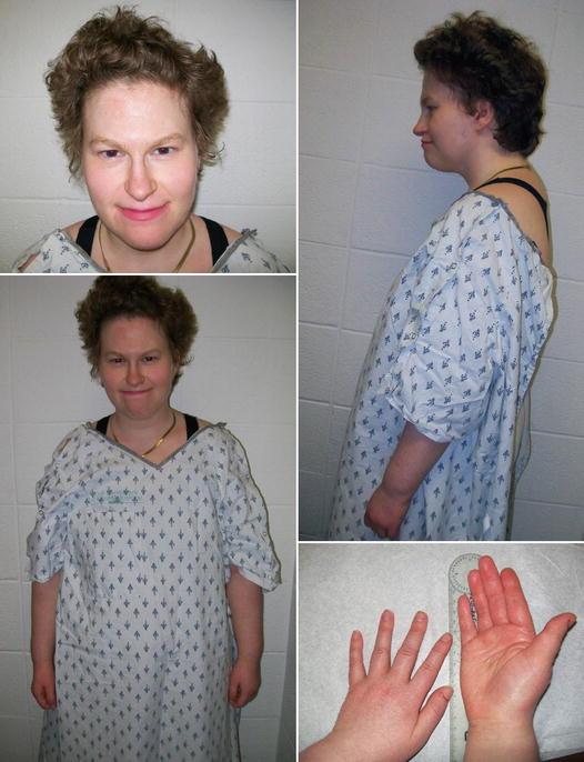 Prader-Willi and Angelman Syndromes | SpringerLink