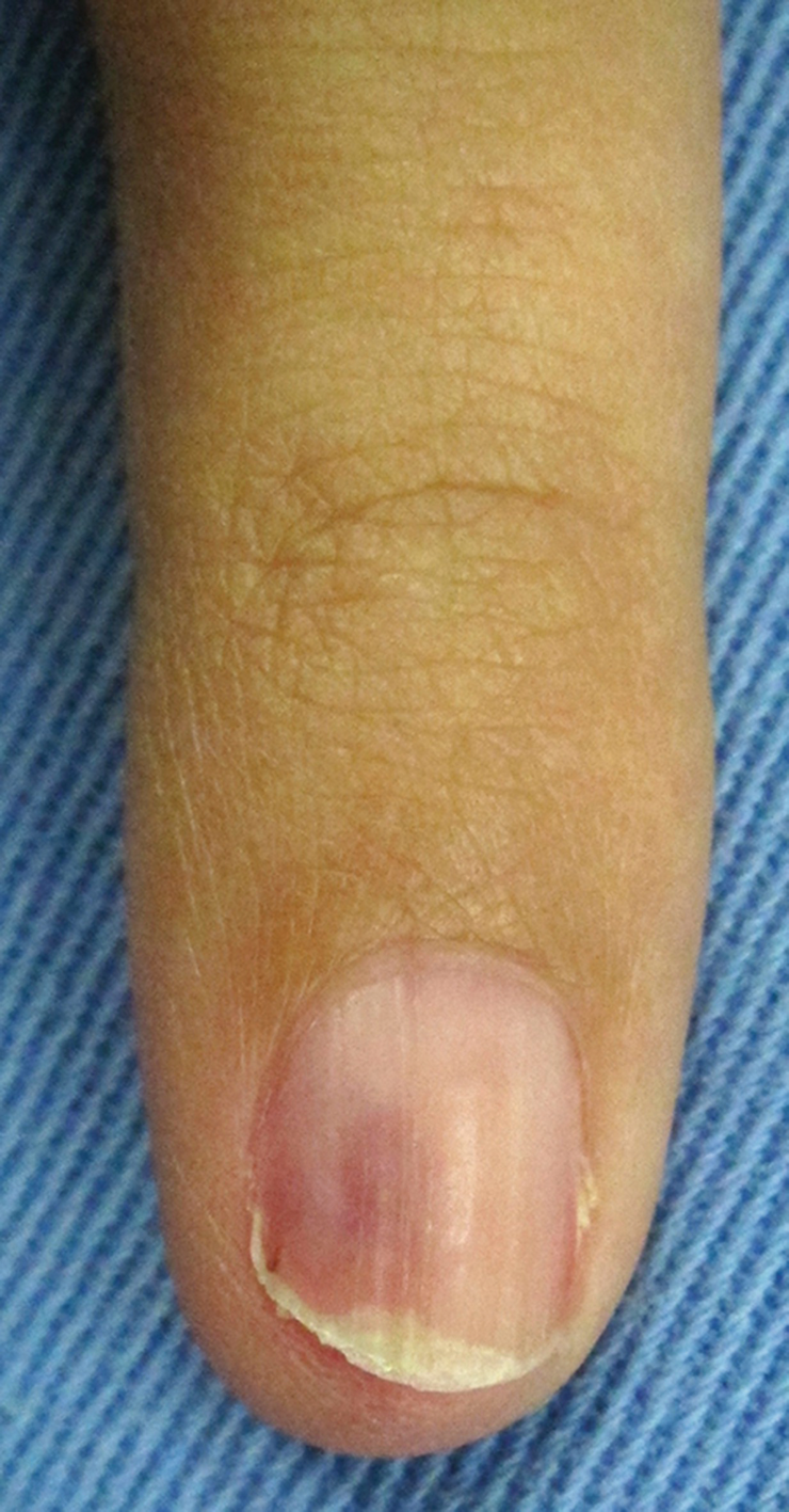 what is a tumor of the nail or nailbed called