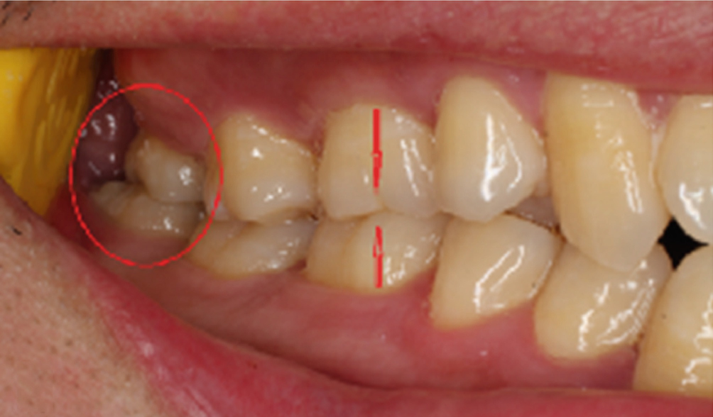 How Much Does It Cost To Remove Your Wisdom Tooth?