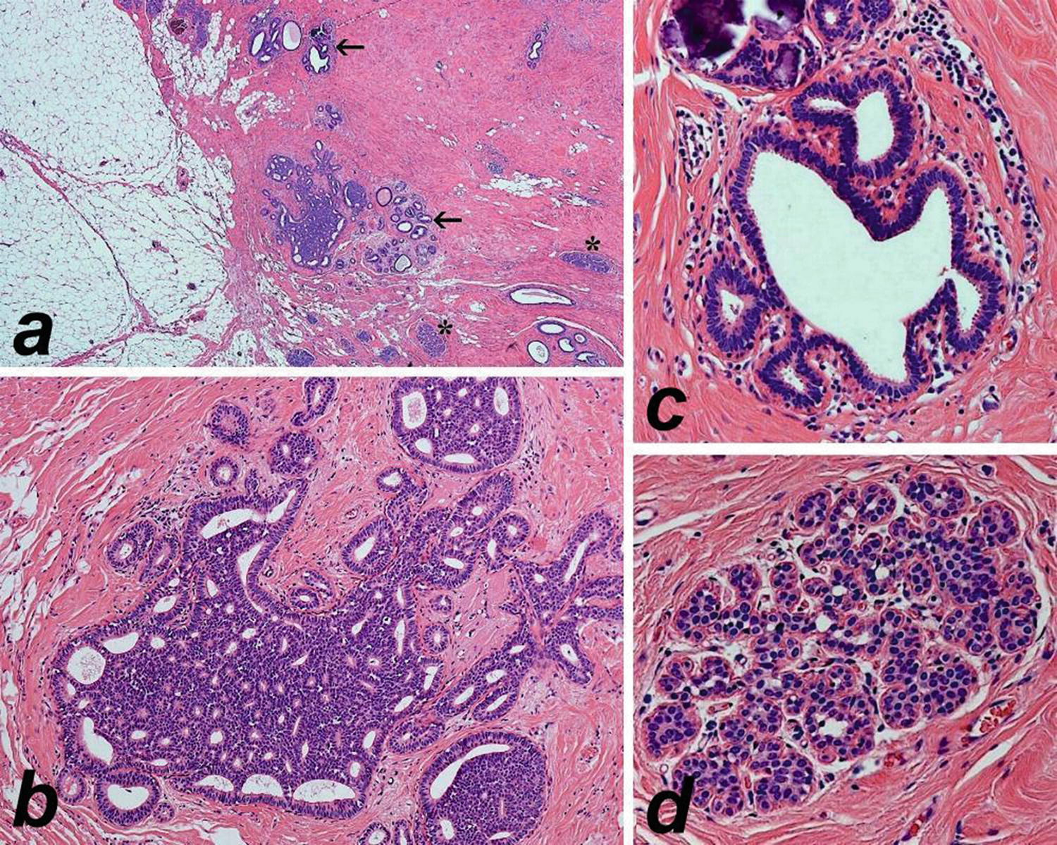 Papilloma atypical ductal hyperplasia