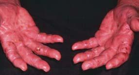 Dyshidrotic eczema | SpringerLink