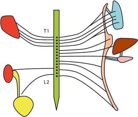 Visceral Referred Pain Springerlink