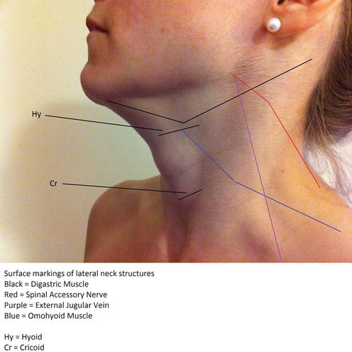 Neck Dissection Anatomy Springerlink