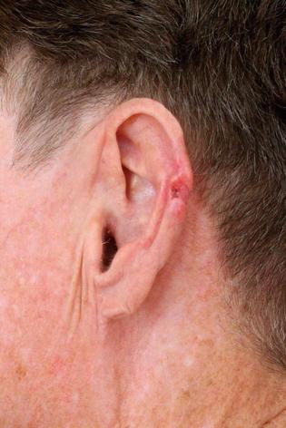Basal Cell Carcinoma of Ear | SpringerLink