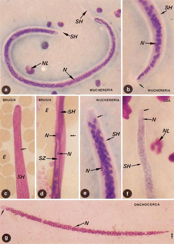 arizona colon și detox spa hpv bowel cancer
