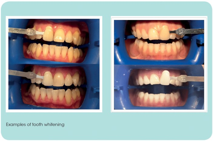 Tooth Whitening Versus Stain Removal Bdj Team