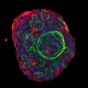 IJMS   Free Full-Text   Mast Cells, Angiogenesis and