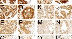 prostate cancer articles 2021 miért veszélyes a prosztata adenoma