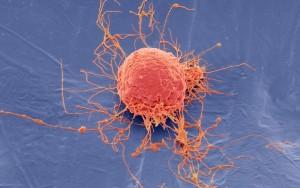 Boom in unproven cell therapies intensifies regulatory
