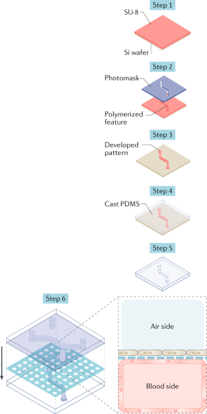 Modelling cancer in microfluidic human organs-on-chips | Nature