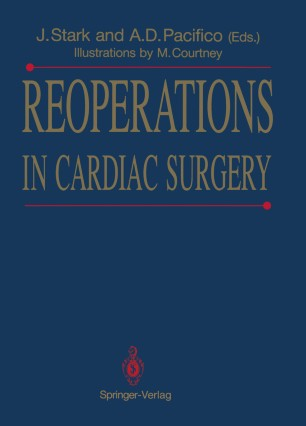 Kirklin Cardiac Surgery Ebook