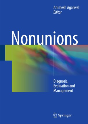 Nonunions : Diagnosis, Evaluation and Management