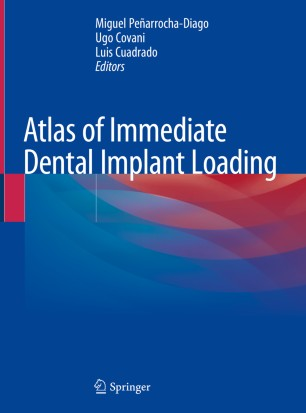 Atlas Immediate Dental Implant Loading 978-3-030-05546-2
