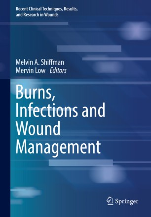 Burns, Infections Wound Management 2020 978-3-030-10686-7