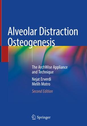 Alveolar Distraction Osteogenesis Book Cover