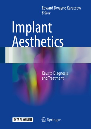 Implant Aesthetics : Keys to Diagnosis and Treatment