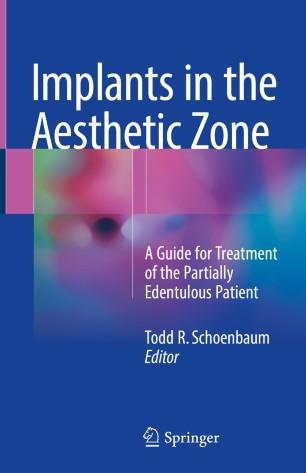 Implants in the Aesthetic Zone | SpringerLink