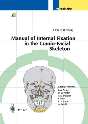 Ao Manual Of Internal Fixation Pdf