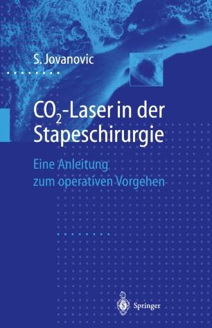 CO2-Laser in der Stapeschirurgie