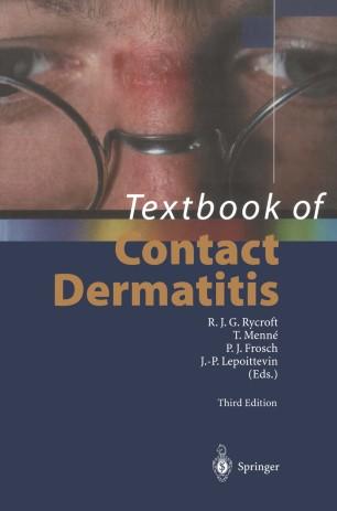 Textbook of Contact Dermatitis