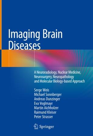 Imaging Brain Diseases 2019 978-3-7091-1544-2