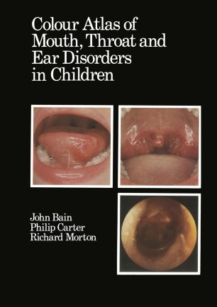 Colour Atlas of Mouth, Throat and Ear Disorders in Children