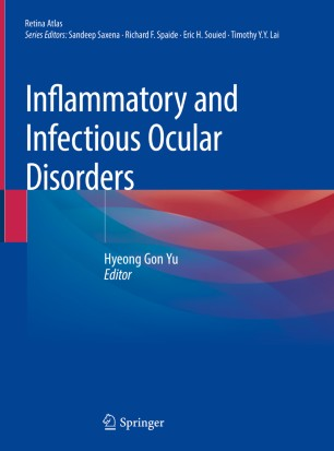 Inflammatory Infectious Ocular Disorders 2020 978-981-13-8546-9