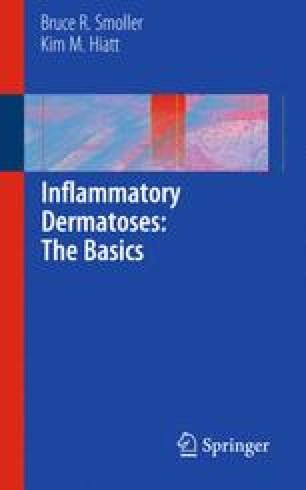 Inflammatory Dermatoses: The Basics
