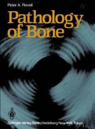 Pathology of Bone
