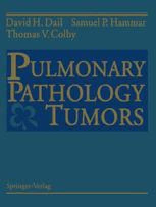 Pulmonary Pathology — Tumors