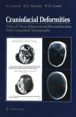 Craniofacial Deformities