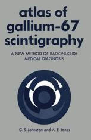 Atlas of Gallium-67 Scintigraphy