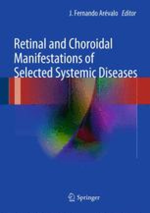 Retinal And Choroidal Manifestations In Bartonellosis Lyme Disease