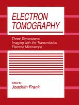 Electron Tomography