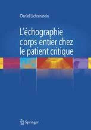 L'échographie corps entier chez le patient critique - Daniel Lichtenstein