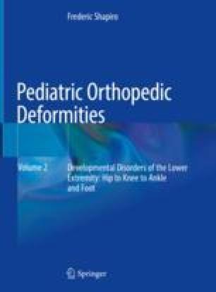 Developmental Disorders of the Knee | SpringerLink